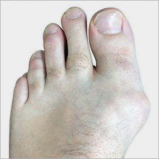 http://dubaipodiatry.com/wp-content/uploads/2015/11/DPC-BUnion-3-320x320.jpg
