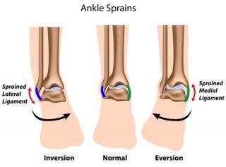 Deltoid Ligament Ankle Sprain | Dubai Podiatry Centre