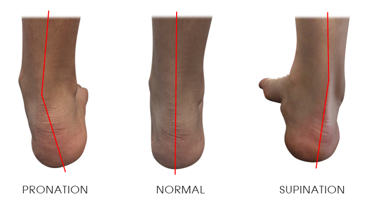 http://dubaipodiatry.com/wp-content/uploads/2017/06/SUPINATION-1.jpg