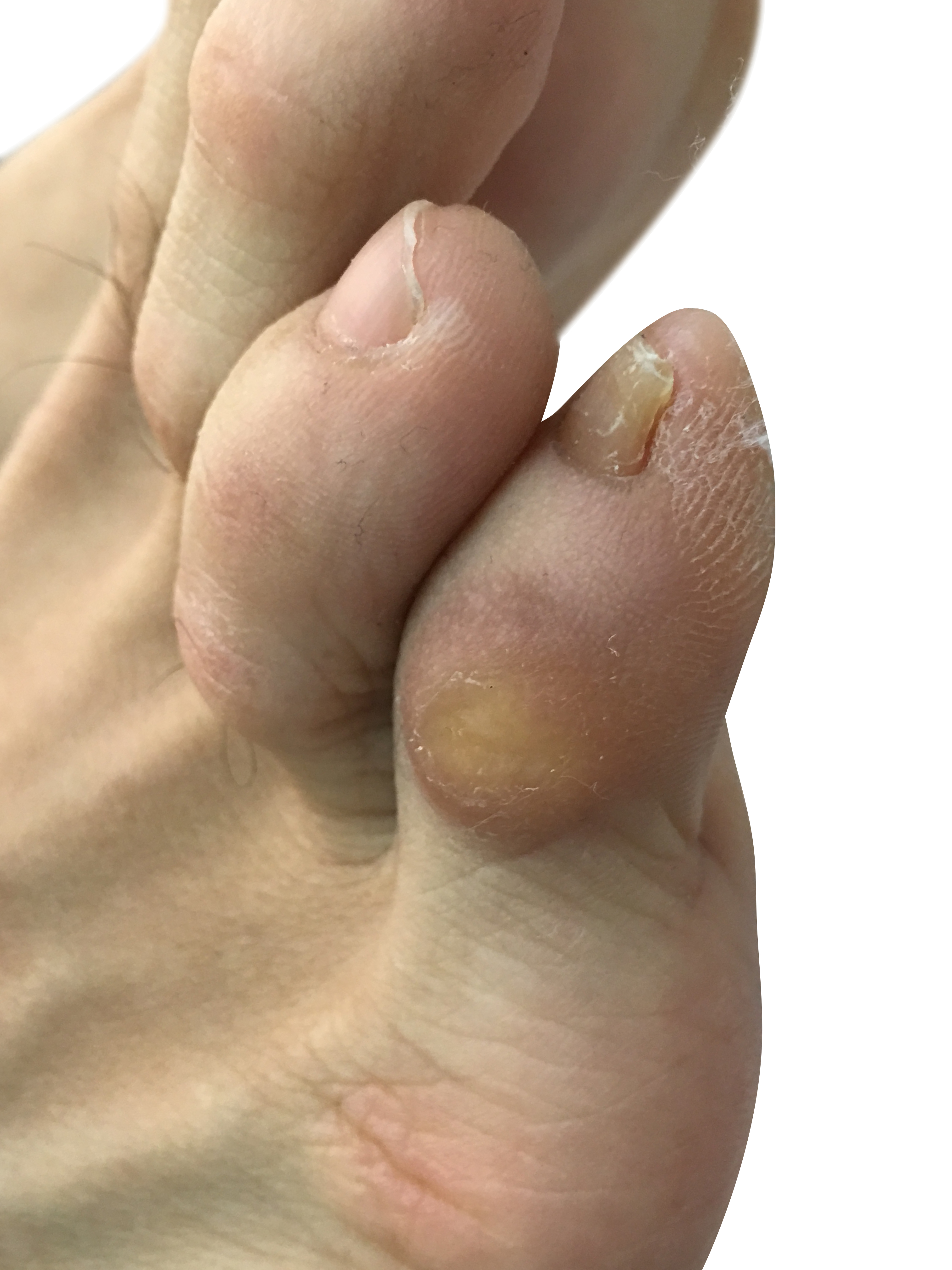http://dubaipodiatry.com/wp-content/uploads/2018/01/2.jpg