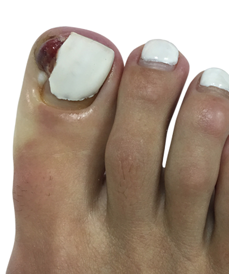 http://dubaipodiatry.com/wp-content/uploads/2018/03/1.jpg