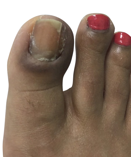 http://dubaipodiatry.com/wp-content/uploads/2018/03/2.jpg