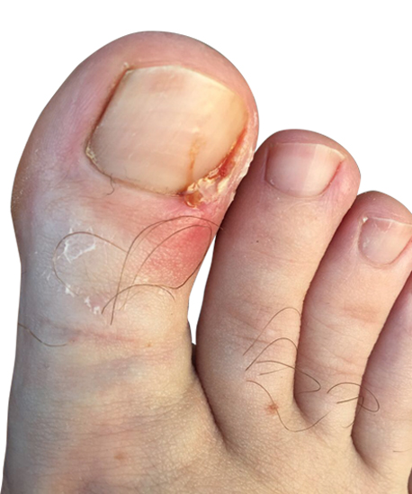 http://dubaipodiatry.com/wp-content/uploads/2018/03/3.jpg