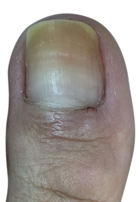 Yellow toenails after wearing nail polish | Dubai Podiatry Centre