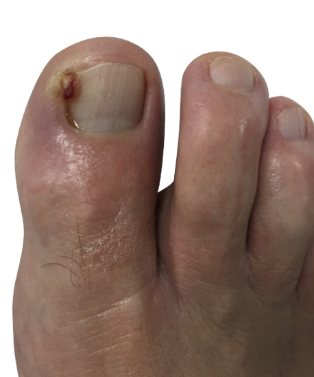http://dubaipodiatry.com/wp-content/uploads/2018/03/4.jpg