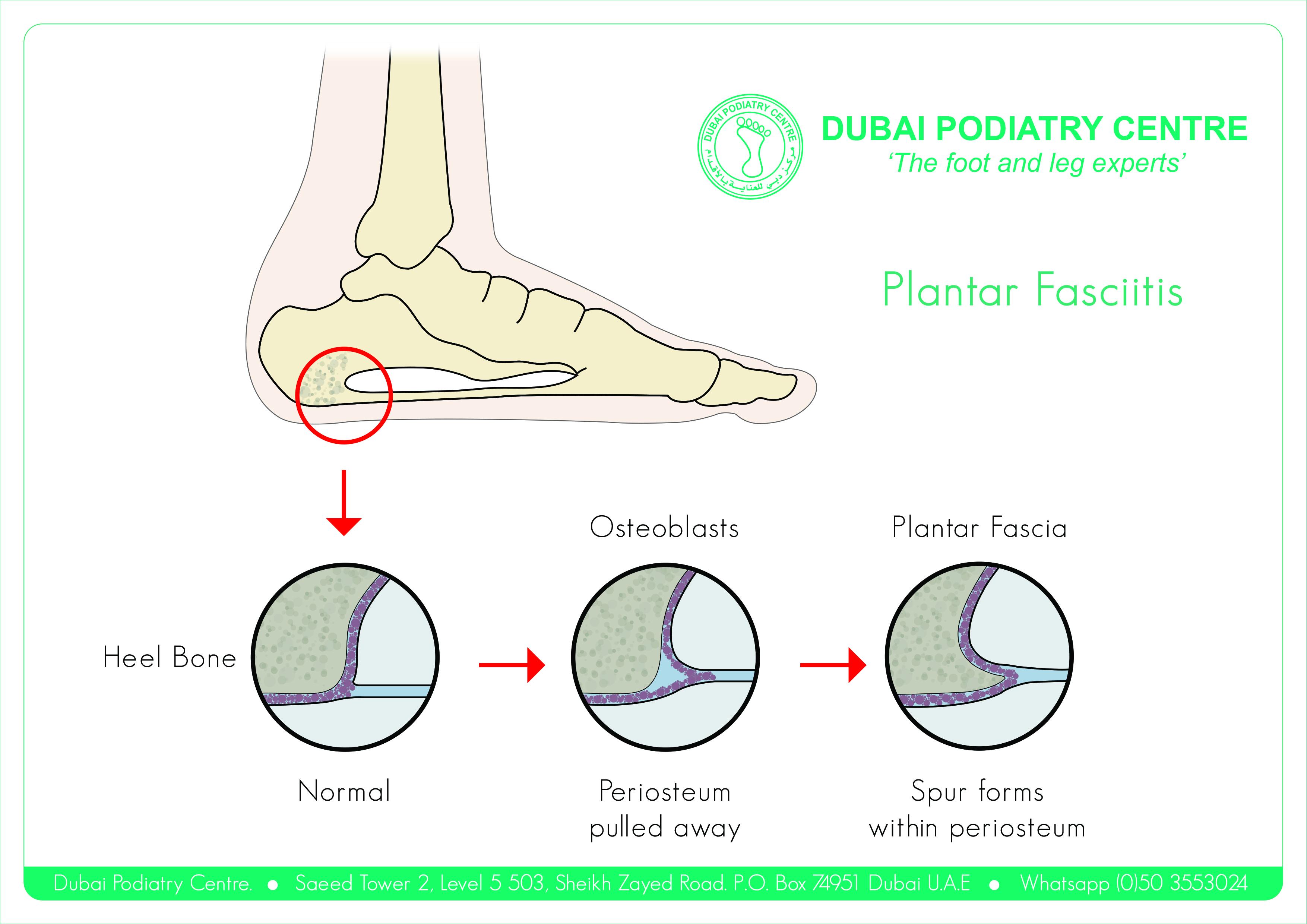 http://dubaipodiatry.com/wp-content/uploads/2018/04/Plantar-Fascia_Front.jpg