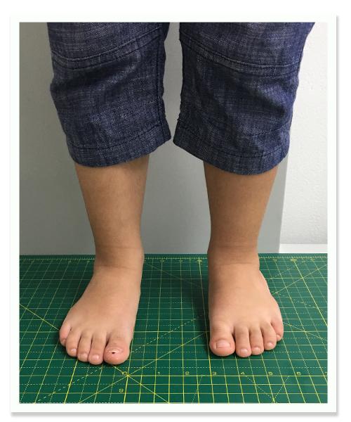 http://dubaipodiatry.com/wp-content/uploads/2018/10/Flat-foot-center-Kids-Flat-feet-2.jpg