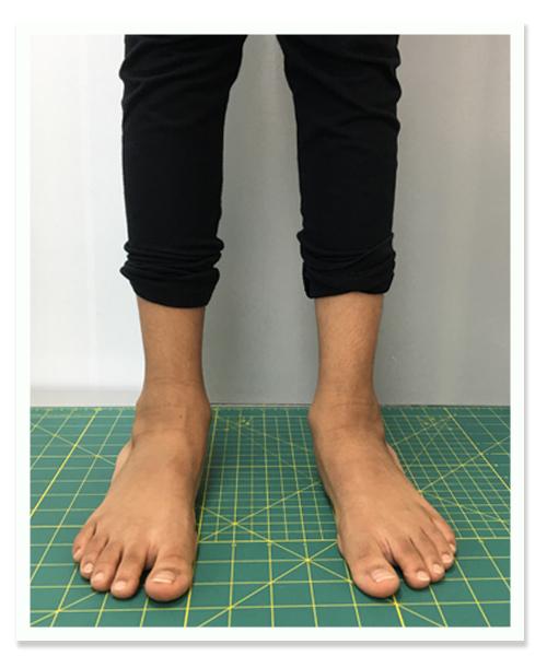 http://dubaipodiatry.com/wp-content/uploads/2018/10/Flat-foot-center-Kids-Flat-feet-6.jpg