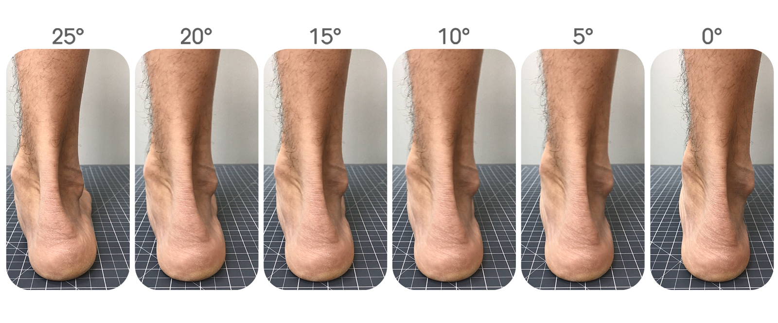 http://dubaipodiatry.com/wp-content/uploads/2019/01/5-degrees.png
