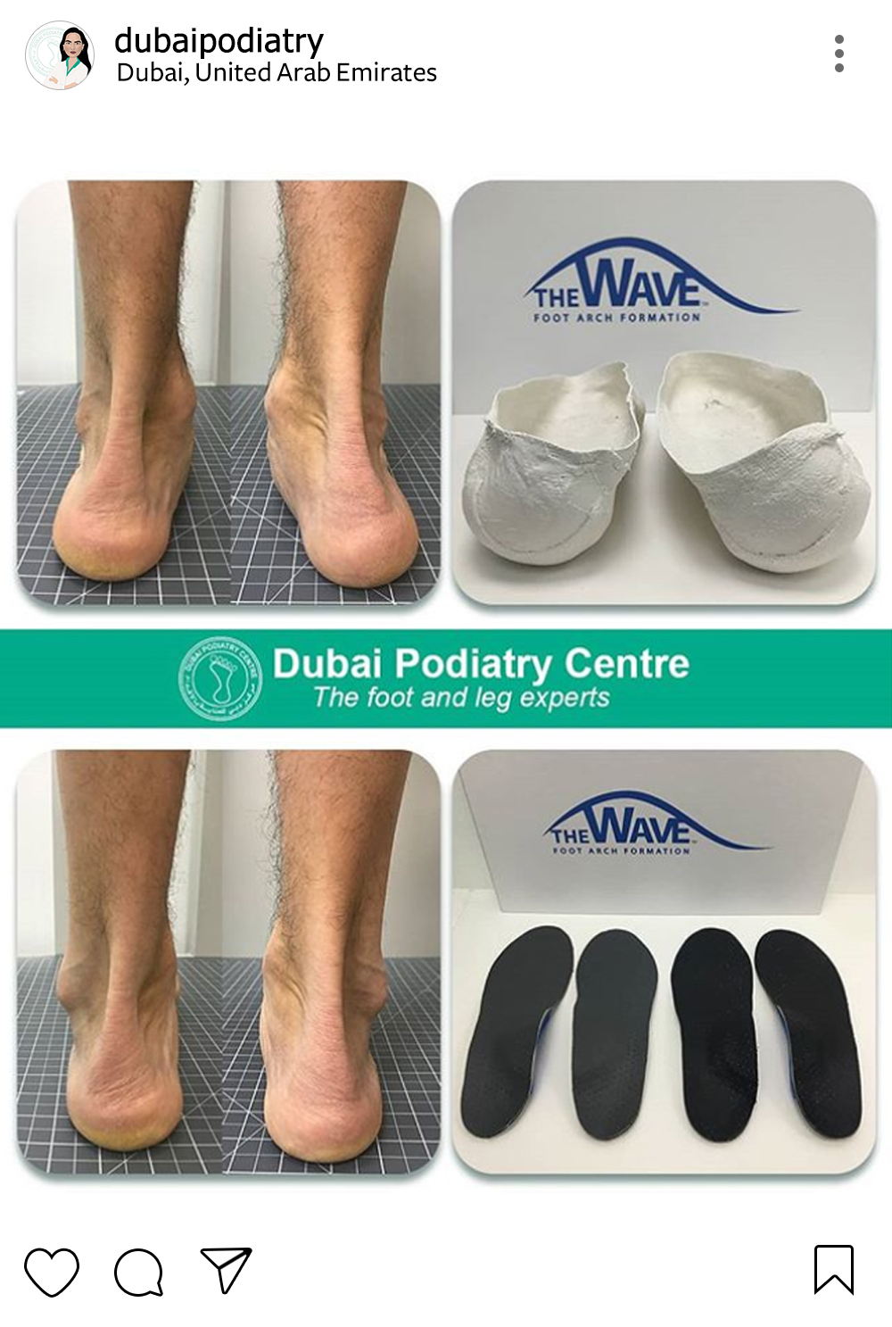 http://dubaipodiatry.com/wp-content/uploads/2019/01/Dubai-Podiatry-Instagram-1a.jpg