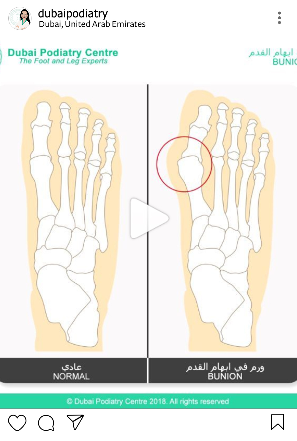 http://dubaipodiatry.com/wp-content/uploads/2019/01/Dubai-Podiatry-Instagram-4.jpg