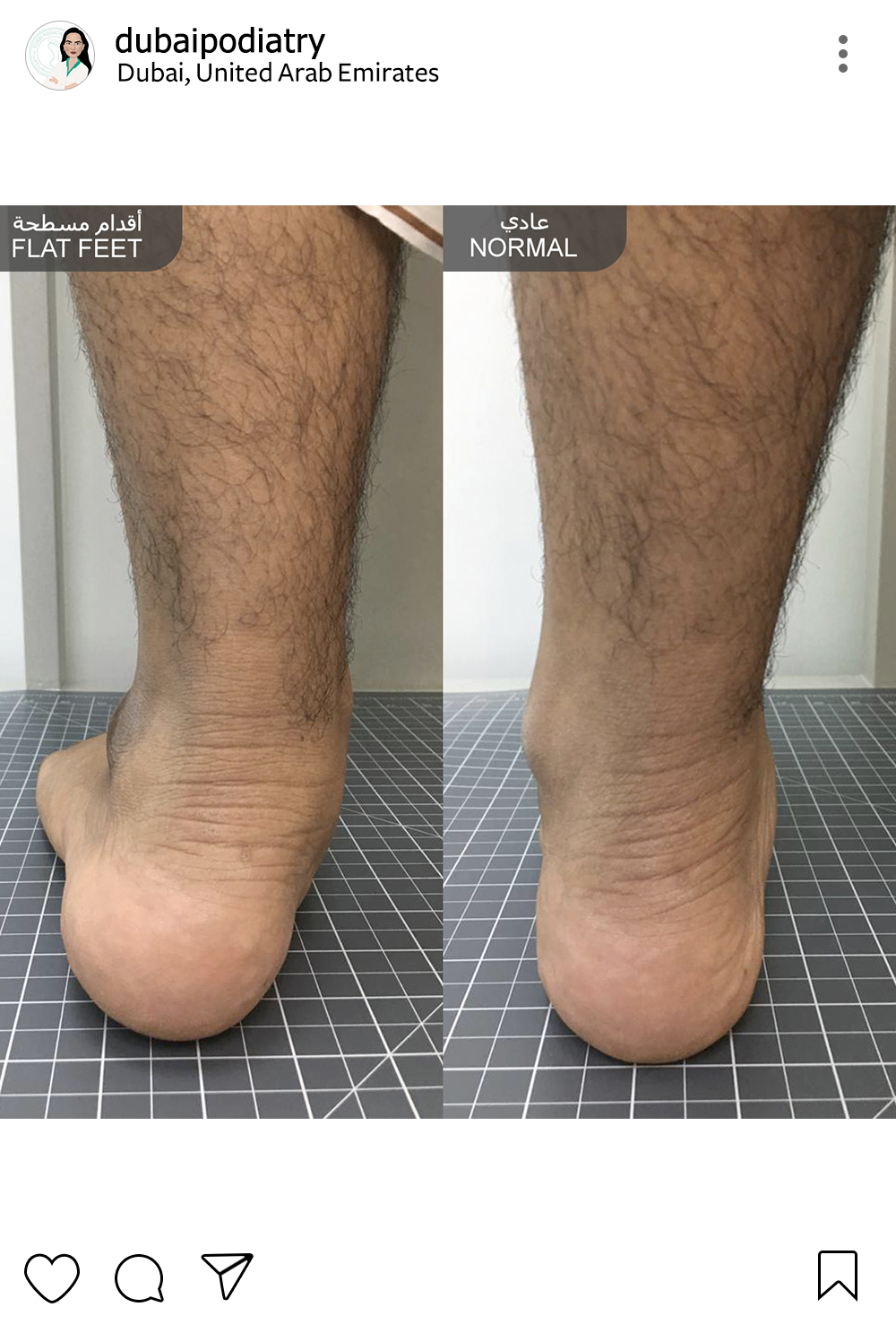 http://dubaipodiatry.com/wp-content/uploads/2019/01/Dubai-Podiatry-Instagram-5.jpg