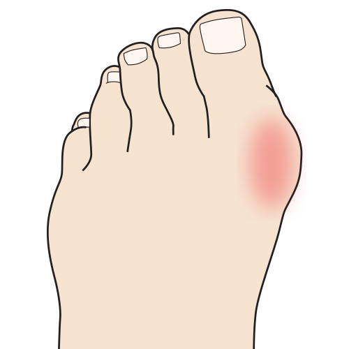 http://dubaipodiatry.com/wp-content/uploads/2019/03/Bunion-Features-Image.jpg