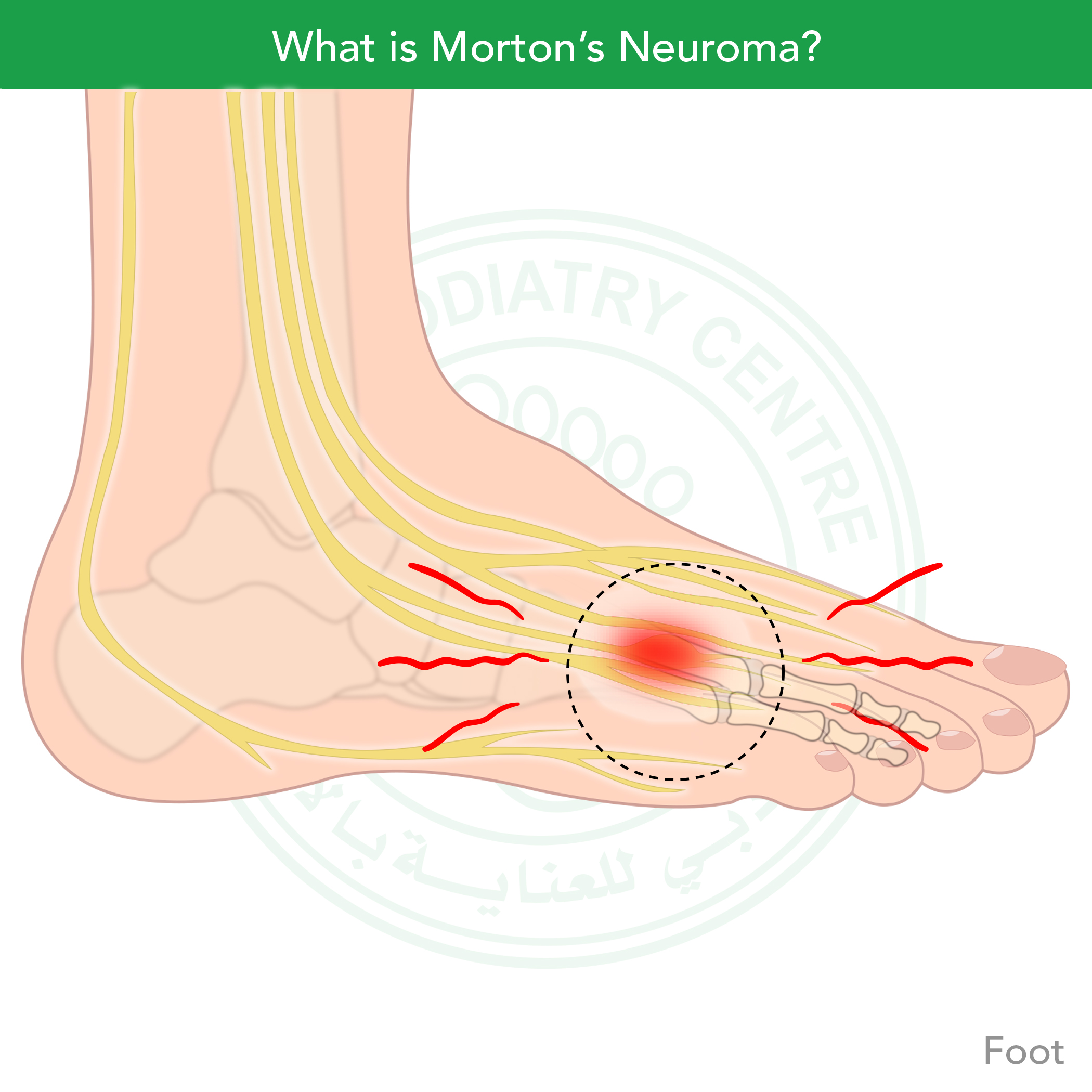 http://dubaipodiatry.com/wp-content/uploads/2019/03/DPC-voice-record_Mortons-Neuroma-21.jpg