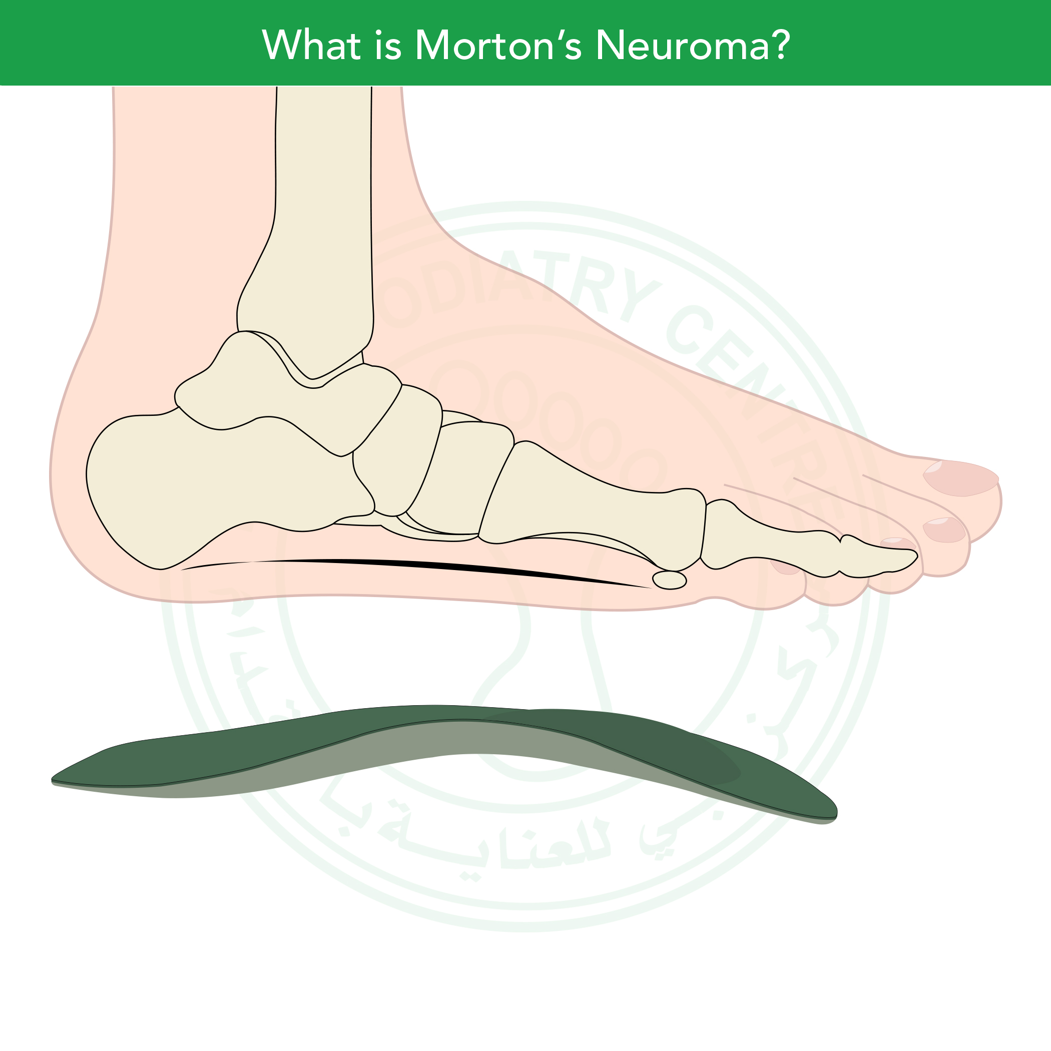 http://dubaipodiatry.com/wp-content/uploads/2019/03/DPC-voice-record_Mortons-Neuroma-25.jpg