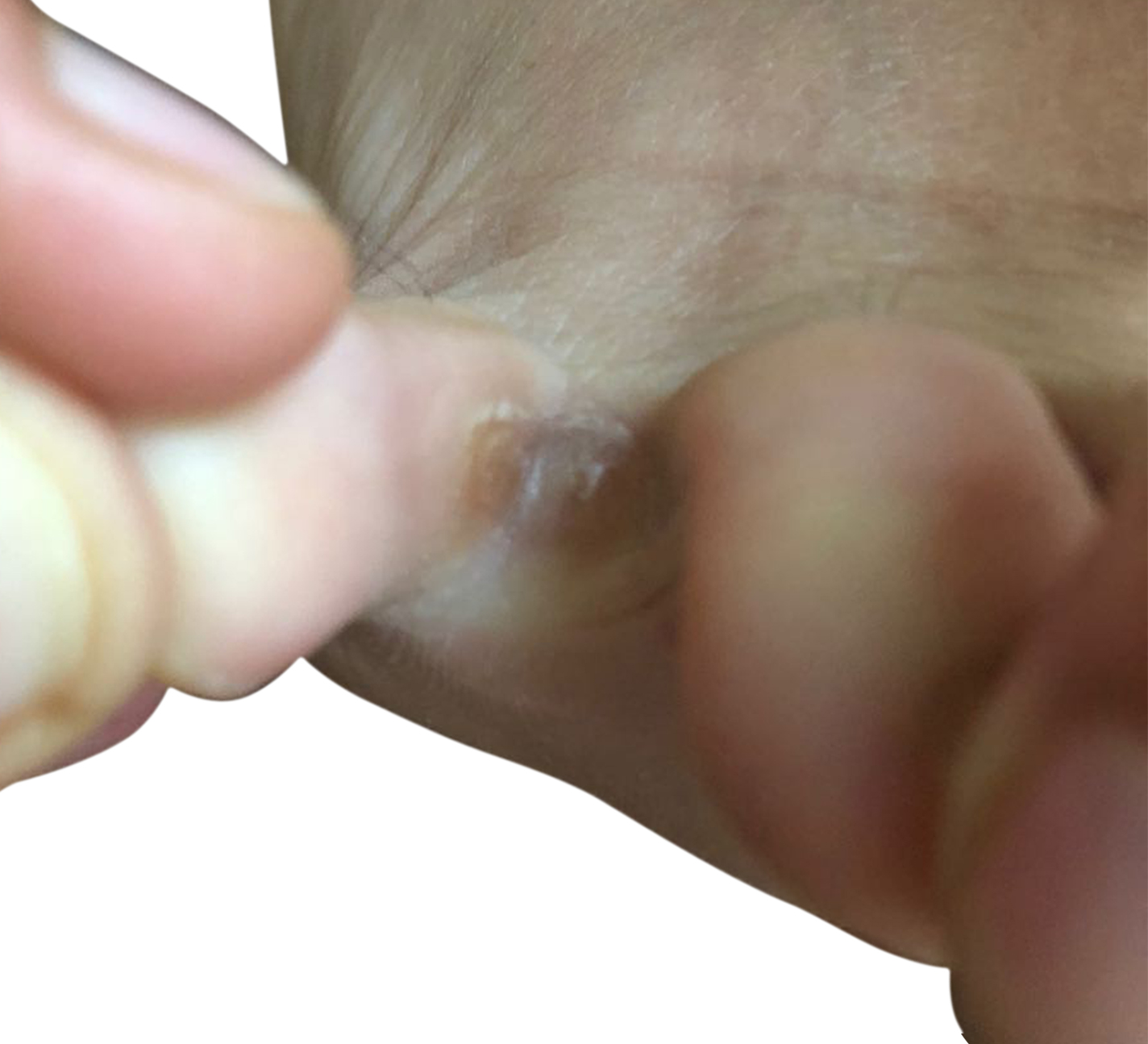 http://dubaipodiatry.com/wp-content/uploads/2019/03/Dubai-Podiatry-Centre-Toe-corn-1.jpg