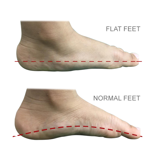 http://dubaipodiatry.com/wp-content/uploads/2019/03/FLAT-FEET_1.jpg