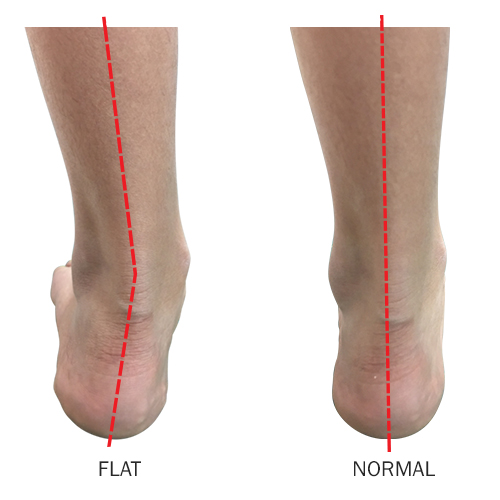 http://dubaipodiatry.com/wp-content/uploads/2019/03/FLAT-FEET_2.jpg