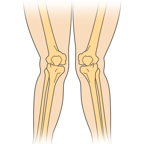 http://dubaipodiatry.com/wp-content/uploads/2019/03/Knock-Knees-Featured-Image.jpg