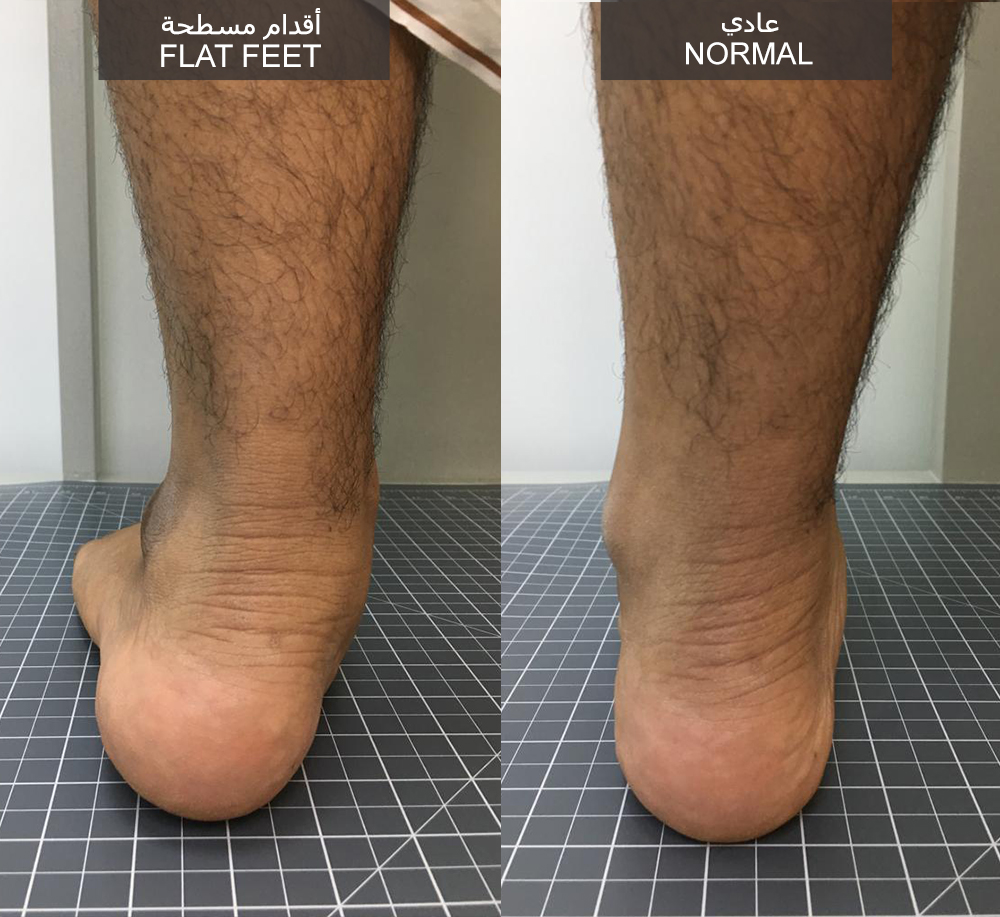 http://dubaipodiatry.com/wp-content/uploads/2019/03/flatfeet-men.jpg