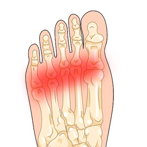 http://dubaipodiatry.com/wp-content/uploads/2019/03/metatarsalgia.jpg