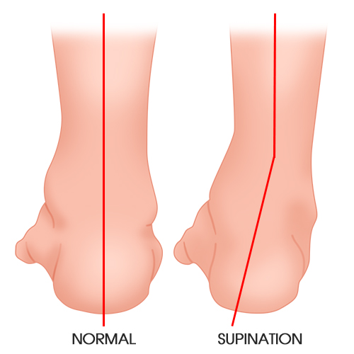 http://dubaipodiatry.com/wp-content/uploads/2019/03/supination.jpg