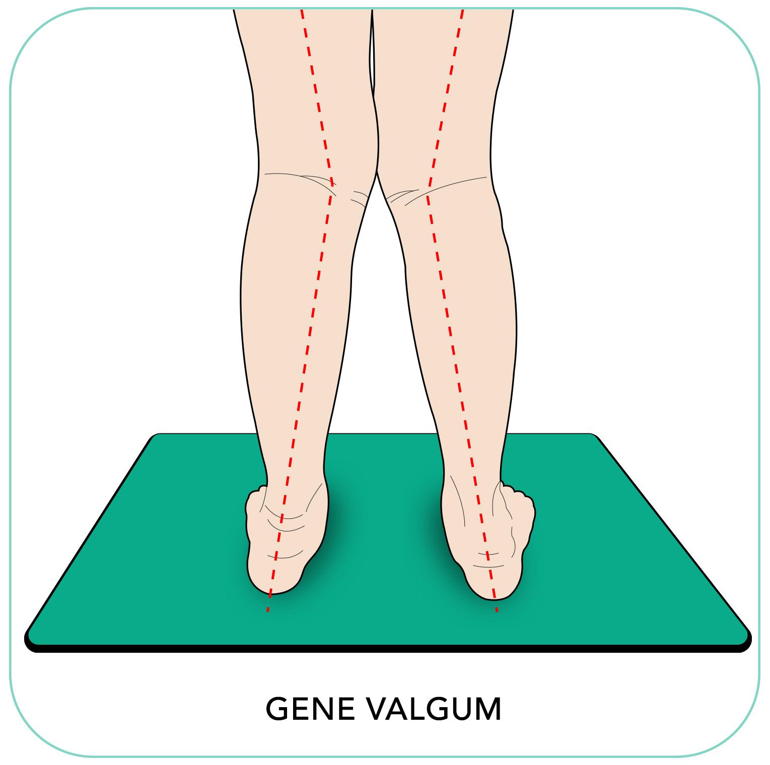 http://dubaipodiatry.com/wp-content/uploads/2019/09/Gene-Valgum-2-2.jpg