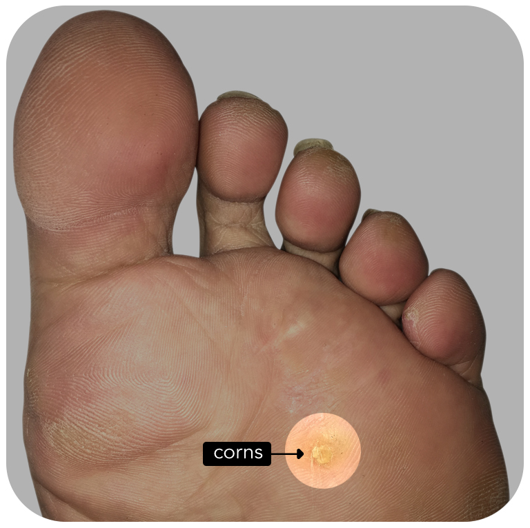 http://dubaipodiatry.com/wp-content/uploads/2019/10/Corns_1.jpg
