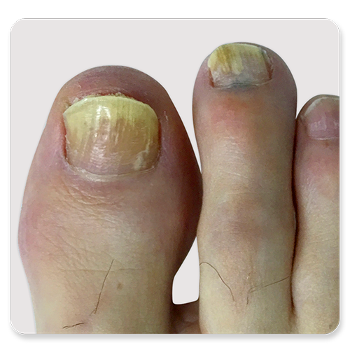 http://dubaipodiatry.com/wp-content/uploads/2019/10/Dubai-Podiatry-Centre-Fungal-Toenail.png
