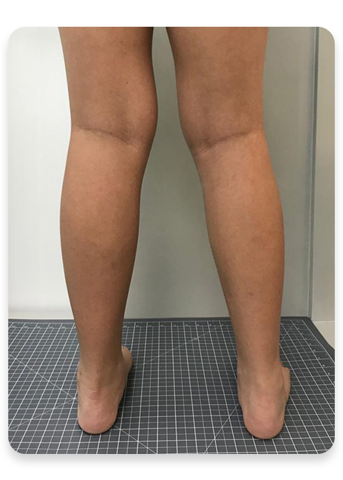 http://dubaipodiatry.com/wp-content/uploads/2019/10/KNOCKKNEES-AFTER.png