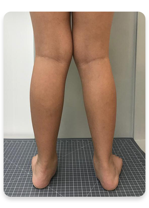 http://dubaipodiatry.com/wp-content/uploads/2019/10/KNOCKKNEES-BEFORE.png