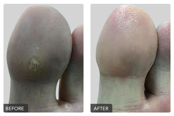 http://dubaipodiatry.com/wp-content/uploads/2019/10/Warts-Before-and-After-2.png