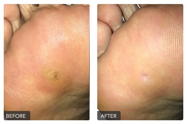 http://dubaipodiatry.com/wp-content/uploads/2019/10/Warts-Before-and-After-3.png