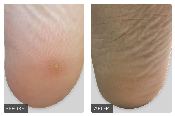 http://dubaipodiatry.com/wp-content/uploads/2019/10/Warts-Before-and-After-4.png