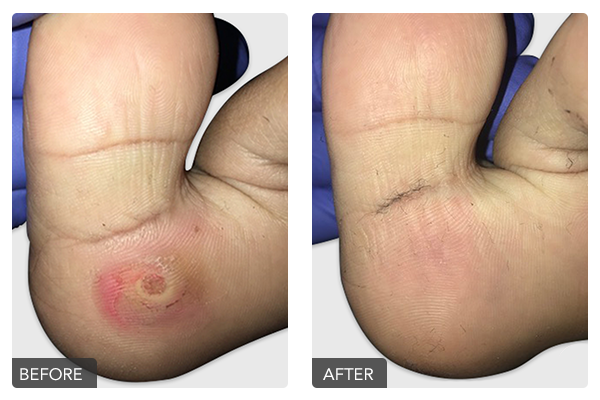 http://dubaipodiatry.com/wp-content/uploads/2019/10/Warts-Before-and-After-5.png