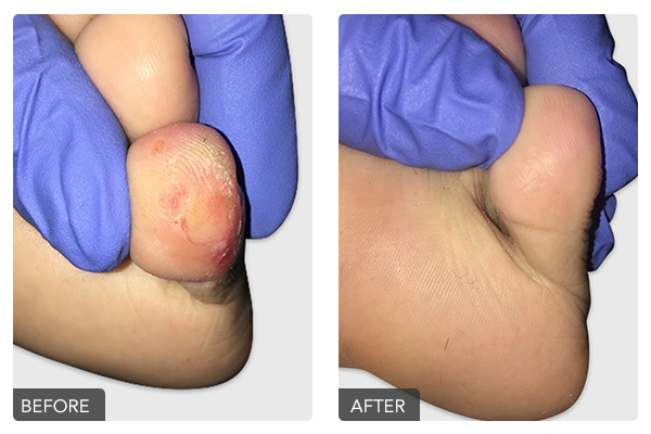 http://dubaipodiatry.com/wp-content/uploads/2019/10/Warts-Before-and-After-6.png