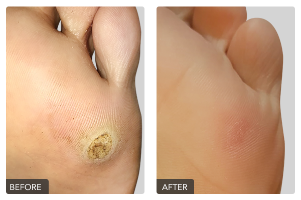 http://dubaipodiatry.com/wp-content/uploads/2019/10/Warts-Before-and-After-7.png