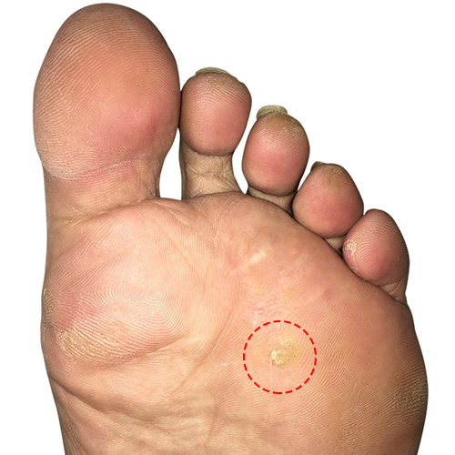 http://dubaipodiatry.com/wp-content/uploads/2019/10/corn-Featured-Image.jpg