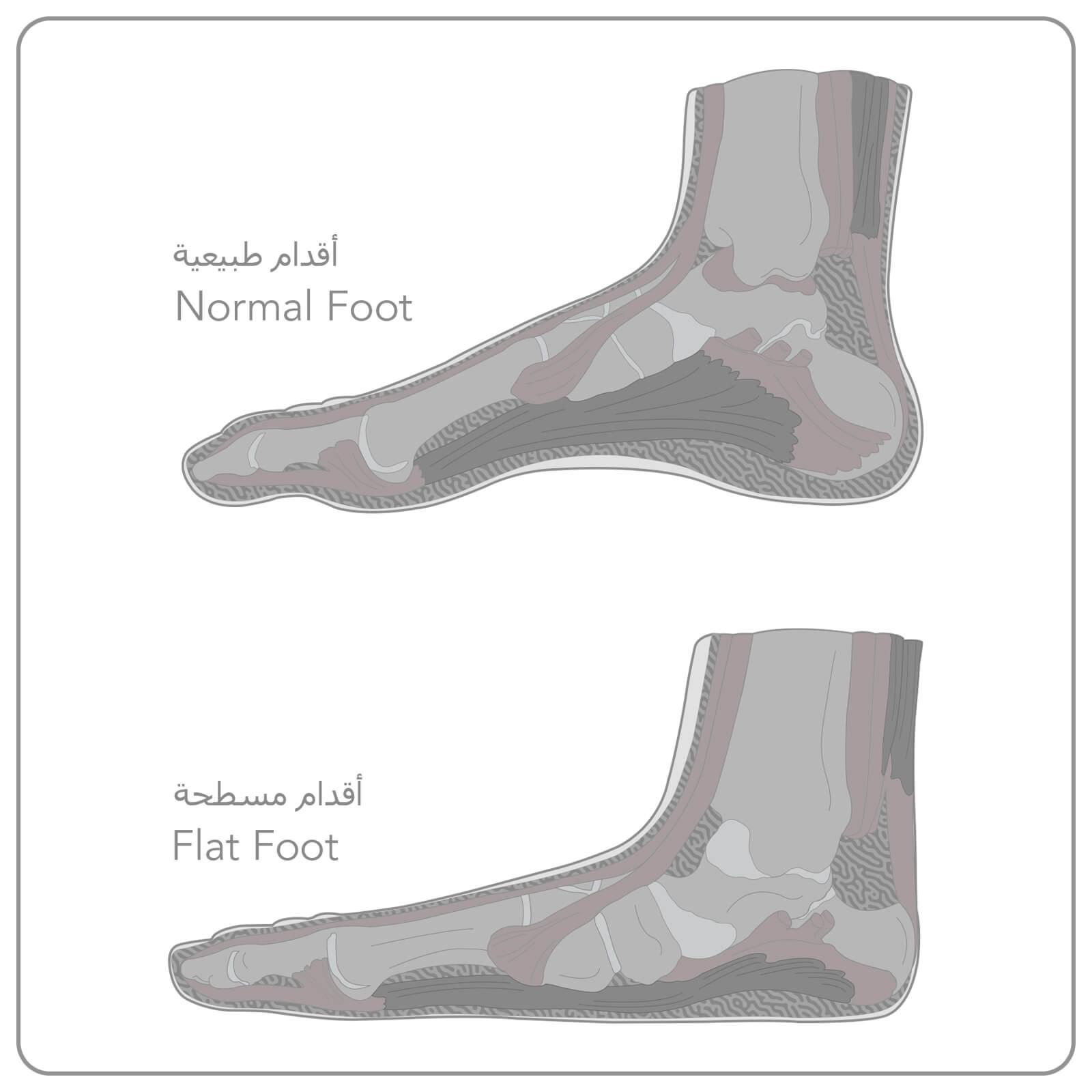 https://dubaipodiatry.com/wp-content/uploads/2021/09/Flat-Feet-NEW-1.jpg