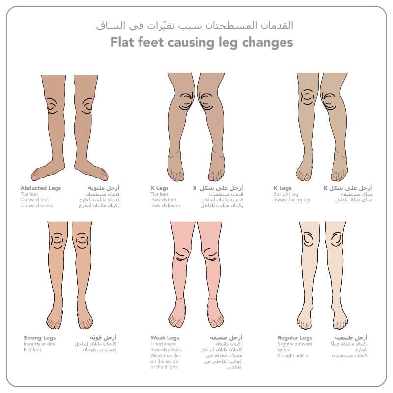 https://dubaipodiatry.com/wp-content/uploads/2021/09/Leg-Changes-1.jpg