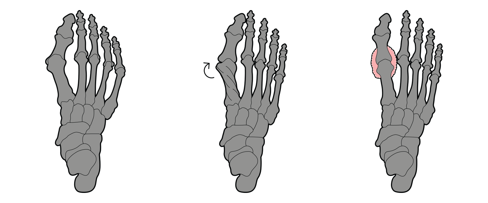 https://dubaipodiatry.com/wp-content/uploads/2021/09/Slider-New-Images_Bunion-1.png