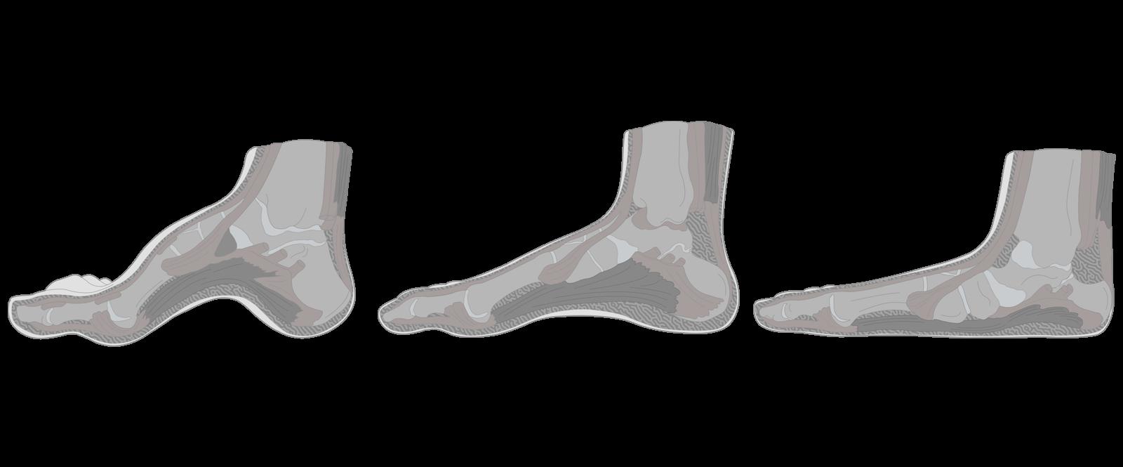 https://dubaipodiatry.com/wp-content/uploads/2021/09/Slider-New-Images_Flat-Feet-1.png