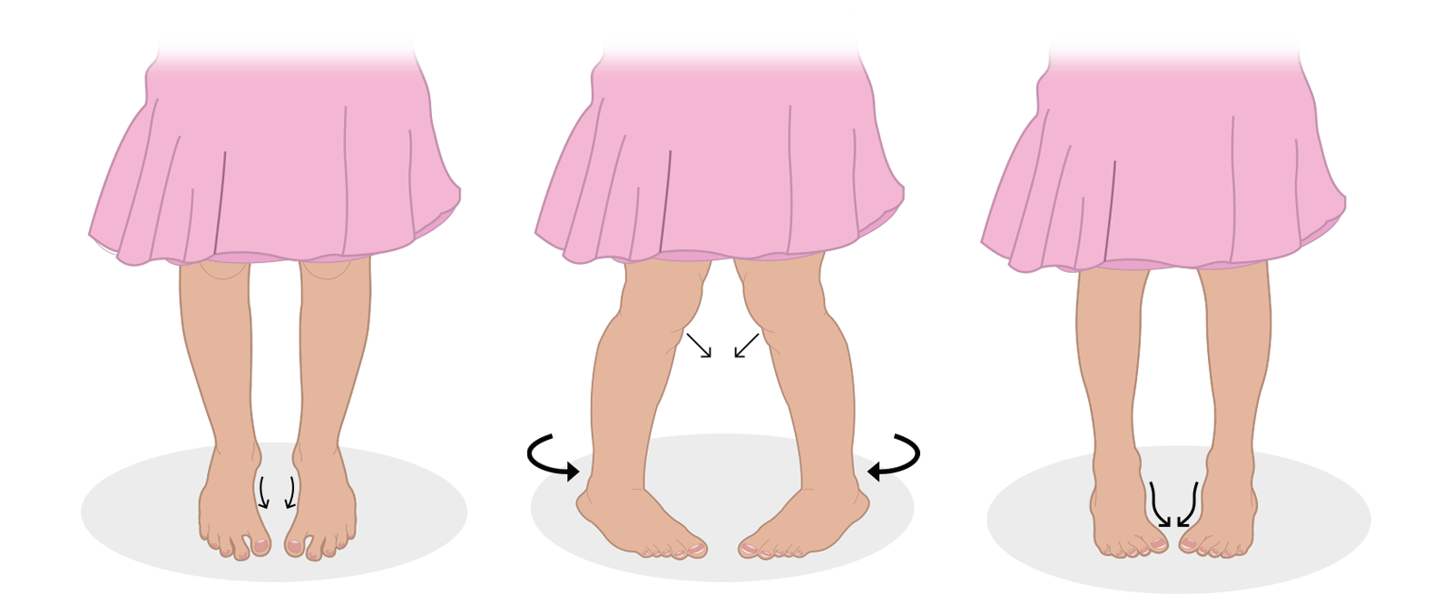 https://dubaipodiatry.com/wp-content/uploads/2021/09/Slider-New-Images_Intoeing-1.png